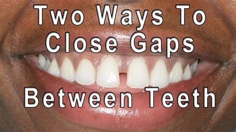how to gaps between teeth