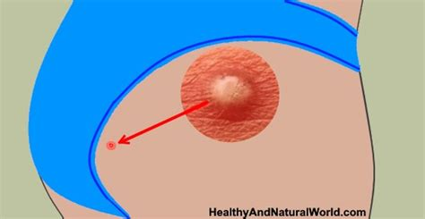 Effective Home Remedies to Get Rid of Boils on Butt ... How To Treat Boils On Buttocks At Home