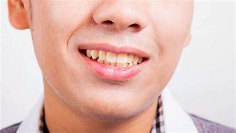 Membersihkan Karang Gigi kapan kita harus ke dokter membersihkan karang gigi