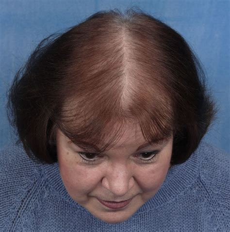 women balding on crown what cause hair loss all about hair loss