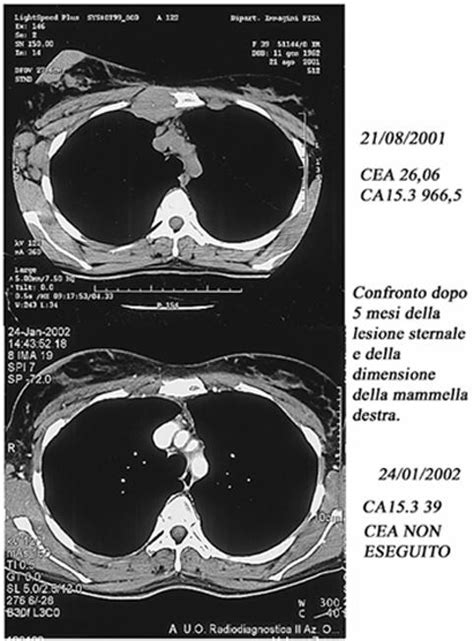 sede mediastinica presentazione di 7 casi di neoplasie trattate con mdb