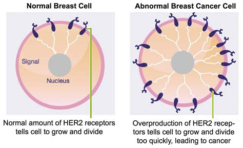 diagrams of breast cancer xeloda and tykerb for my brain metastases cancer