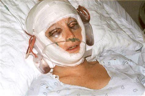 lynn s feminization surgery ffs