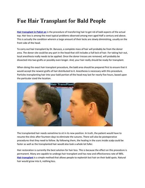 hair transplant in australia what are the factors that 100 ideas to try about hair transplant australia hair