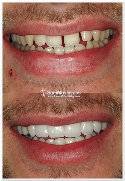 porcelain veneers widen smile and fill gaps up http