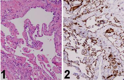 Lymphangioma Circumscriptum Pathology Outlines by Pathology Outlines Lymphangiomatosis