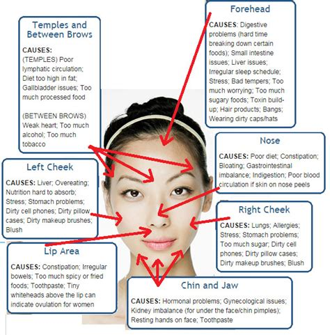 mapping acne position of acne can reveal your health status ayurveda medicare