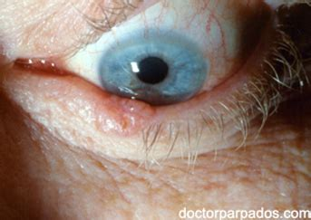 eyelid tumor costa rica eyelid cancer treatment removal surgery doctor specialist surgeon