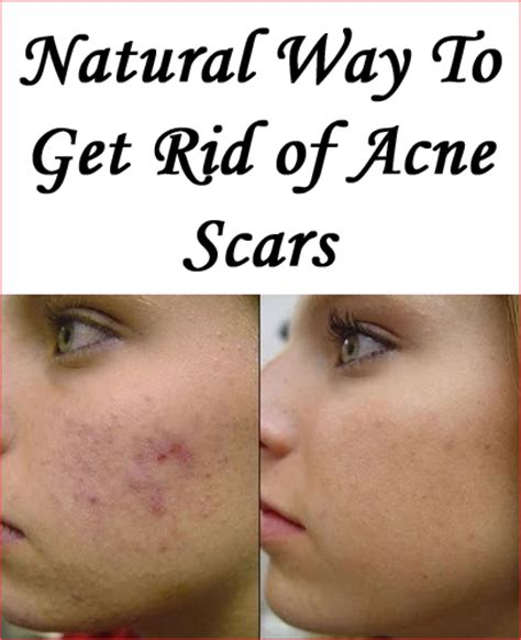 how t get rid of red in salt amd pepper hair how to get rid of acne scars naturally best acne scar