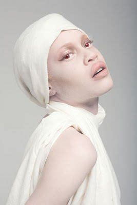 what color do albinos why do albinos pale