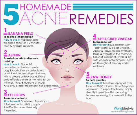 acne home remedies 5 diy acne remedies worldlifestyle