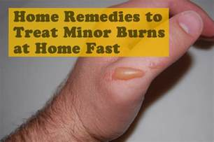 How To Get Rid Of Rug Burn Fast by 15 Effective Home Remedies To Treat Minor Burns At Home Fast