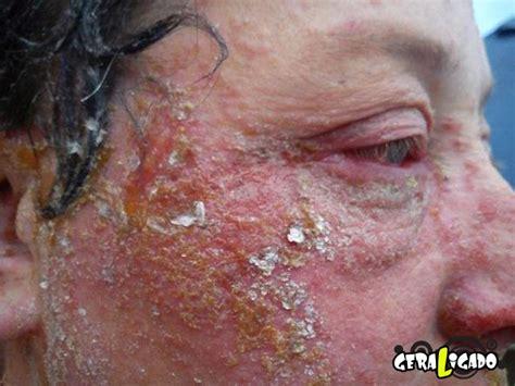 Tinta Permanen Karung Rash Ink pessoas que tiveram rea 231 245 es al 233 rgicas a tinturas de cabelo