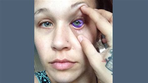 tattoo eye model model may lose partial sight after having eyeball tattooed