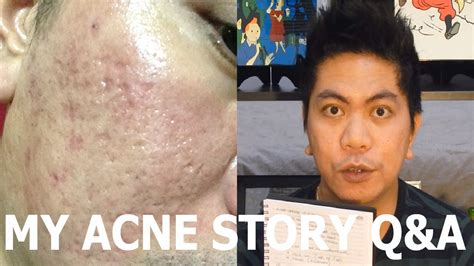 i got rid of all my deep rolling acne scars with msm cream my acne story q a joemixed acne scars update youtube