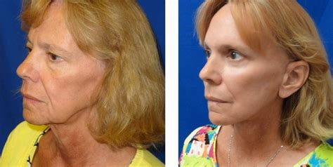 facelifts for women over 60 facelift before and after pictures orlando fl ymd eye