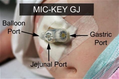 gastro jejunal (gj) tubes feeding tube awareness foundation