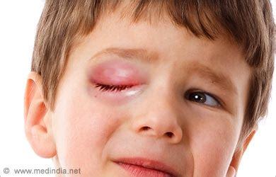 infection symptoms november