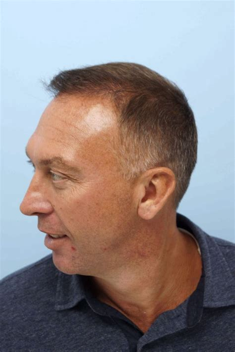 black hairstyles platt search results for full hair transplant black