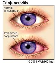 conjunctivitis (pinkeye): symptoms, causes, treatment