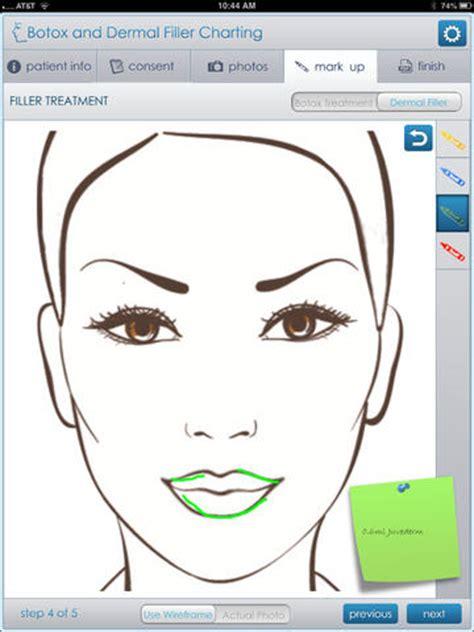 Face Diagram For Botox And Filler Pc Wood Filler Elsavadorla Botox Treatment Record Template