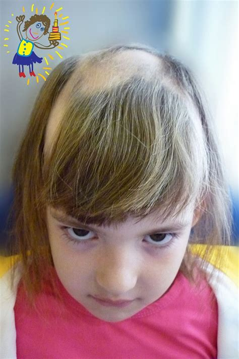 hairstyles for androgenectic alopecia alopecia areata in children painful childhood alopecia