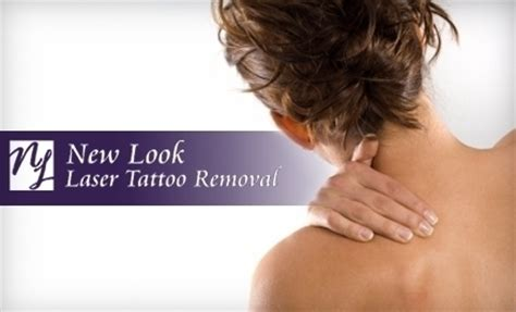 new look laser removal houston tx groupon
