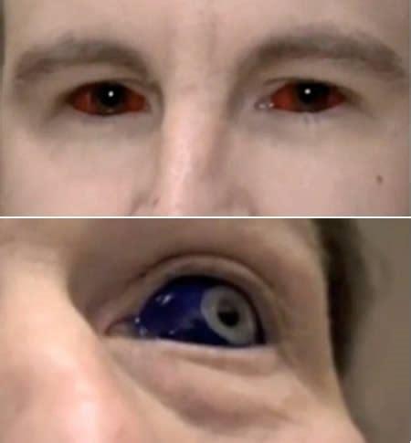 tattoo eyeball guy tatuagem nos olhos entenda por que n 227 o 233 uma boa ideia