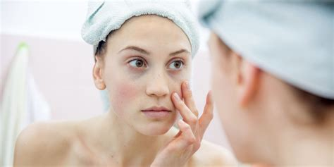 Vegan Detox Caused Bloutchy Itchy Skin by 6 Blotchy Skin Causes Common Skin Care Mistakes That