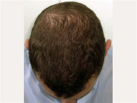 hate hair after surgery 2015 photos of hair transplant 7046 grafts hasson wong