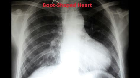 an interesting chest x ray tetralogy of fallot tof - Boat X Ray