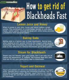 home remedies to get rid of blackheads best 25 blackhead remedies ideas on skin care