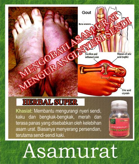 Obat Asam Lambung Sekaligus Obat Asam Urat obat herbal tradisional asam urat dan rematik sehatherba