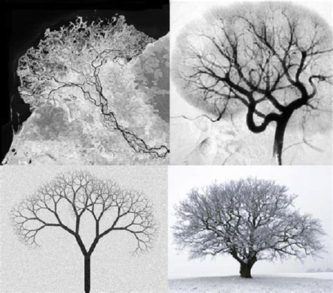 nature patterns human selenga river delta human kidney angiogram fractal image