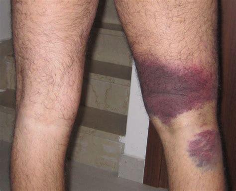 contrattura interno coscia lo strappo lesioni muscolari