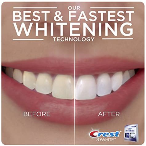 do teeth whitening lights work crest 3d white whitestrips with light 10 ct 11street