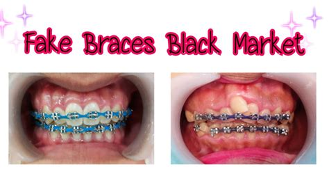 black color braces braces colors black www imgkid the image kid has it