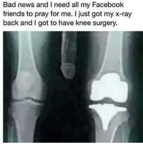 Knee Surgery Meme - 25 best memes about knee surgery knee surgery memes