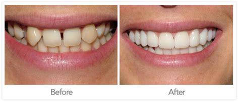 imagenes reales invisalign odontolog 237 a antes y despu 233 s odontolog 237 a ideal medellin
