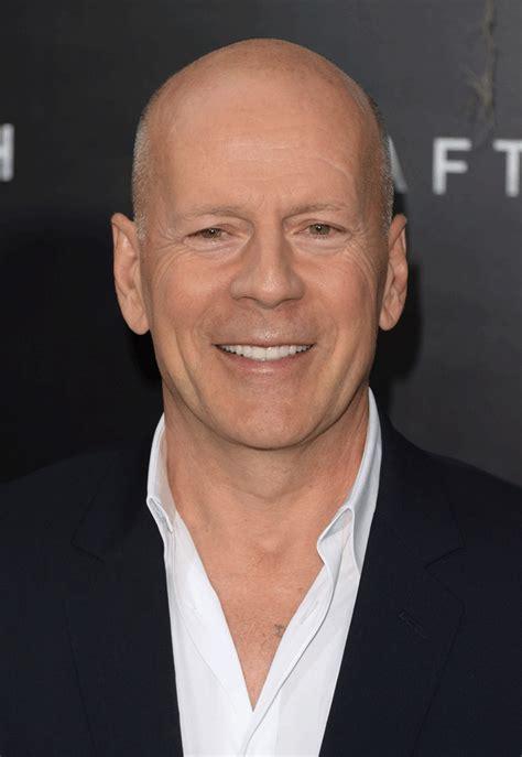 bald or balding celebrities 12 eye opening pictures of bald celebrities with hair