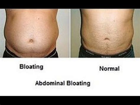 belly inflated looks home remedies for a bloating stomach