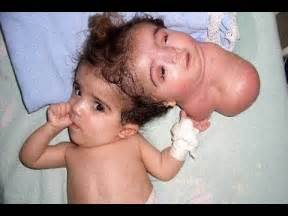 Twin born with 2 heads most amazing birth youtube