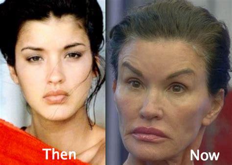 plastic surgery gone wrong botched plastic surgery photos www pixshark com images
