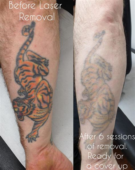 large tattoo removal laser removal birmingham uk