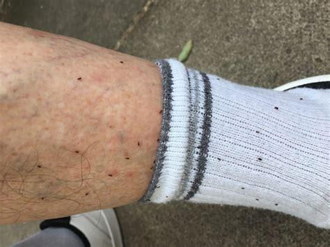 fleas in bed fleas liverpool merseypest pest control liverpool