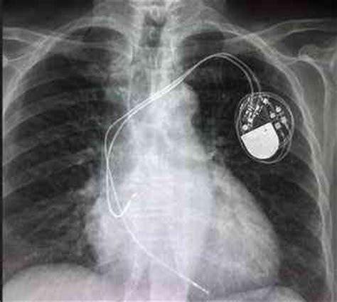 rx horizonte imagenes medicas y odontologicas calidad y seguridad al paciente en la sala de radiolog 237 a