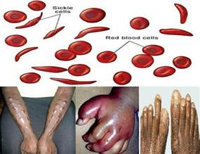 everything you need to know about sickle cell disease
