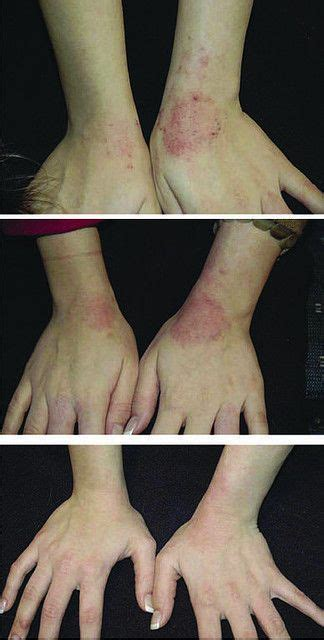 Detox Rash On Foot by 80 Best Psoriasis Treatment Images On