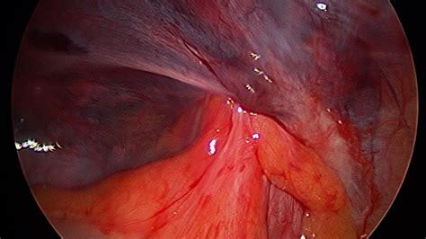 inguinal hernia inguinal groin hernia dr dennis orr surgeon