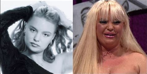 plastic surgery gone wrong plastic surgery gone wrong damn cool pictures